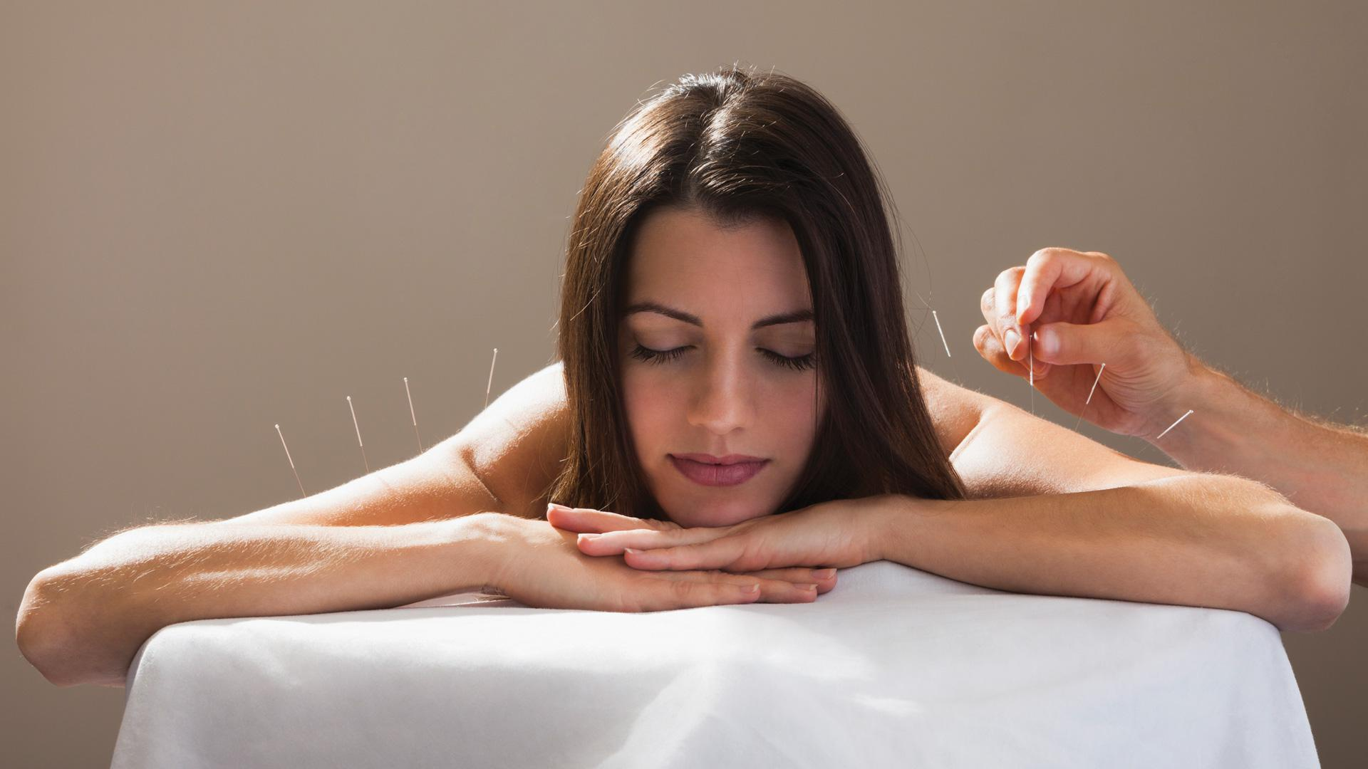 An acupuncture cynic tries it for the first time